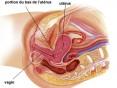 Resumo - câncer do colo do útero