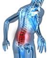 Contra a fibromialgia, movimento antes de tudo