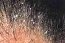 Micose do couro cabeludo (pitiríase)