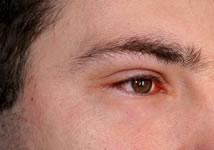 conjonctivite-symptomes