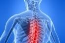 Prevenção dor nas costas
