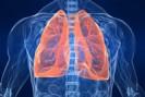 Resumo sobre o câncer de pulmão
